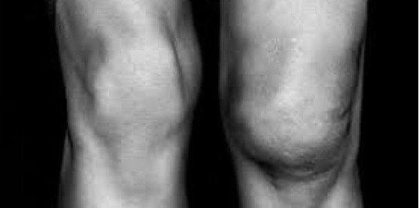 Ύδραρθρο στο γόνατο